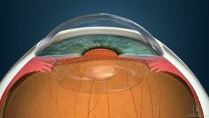 chirurgia refrattiva tecniche