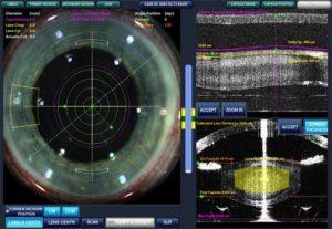 incisioni corneali